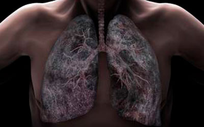 Заболевания бронхолегочной системы - Квинмед