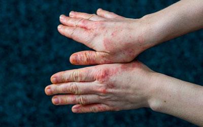 Болезнь пеллагра – Квинмед
