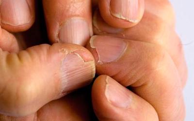 Ороговевшие части кожи и ногтей - Квинмед