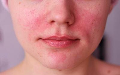 Резким покраснением кожи, особенно лица - Квинмед