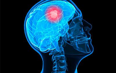Опухоли мозга - Квинмед